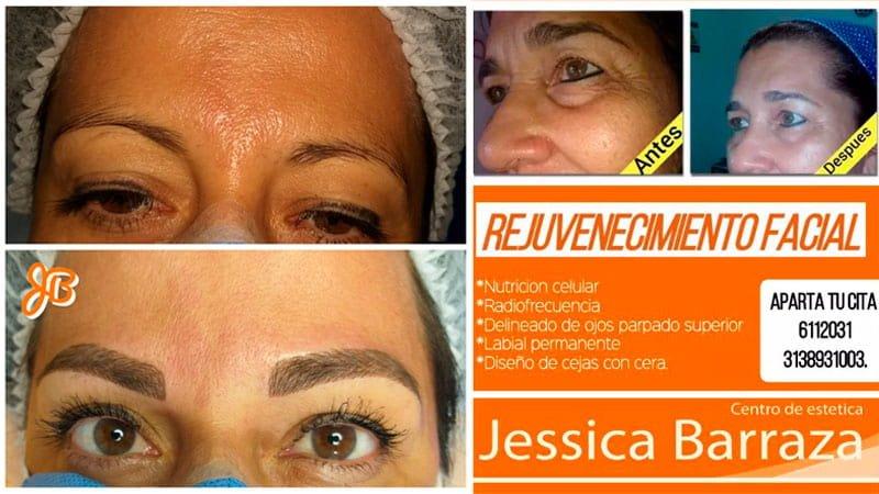 Centro de Estética Jessica Barraza